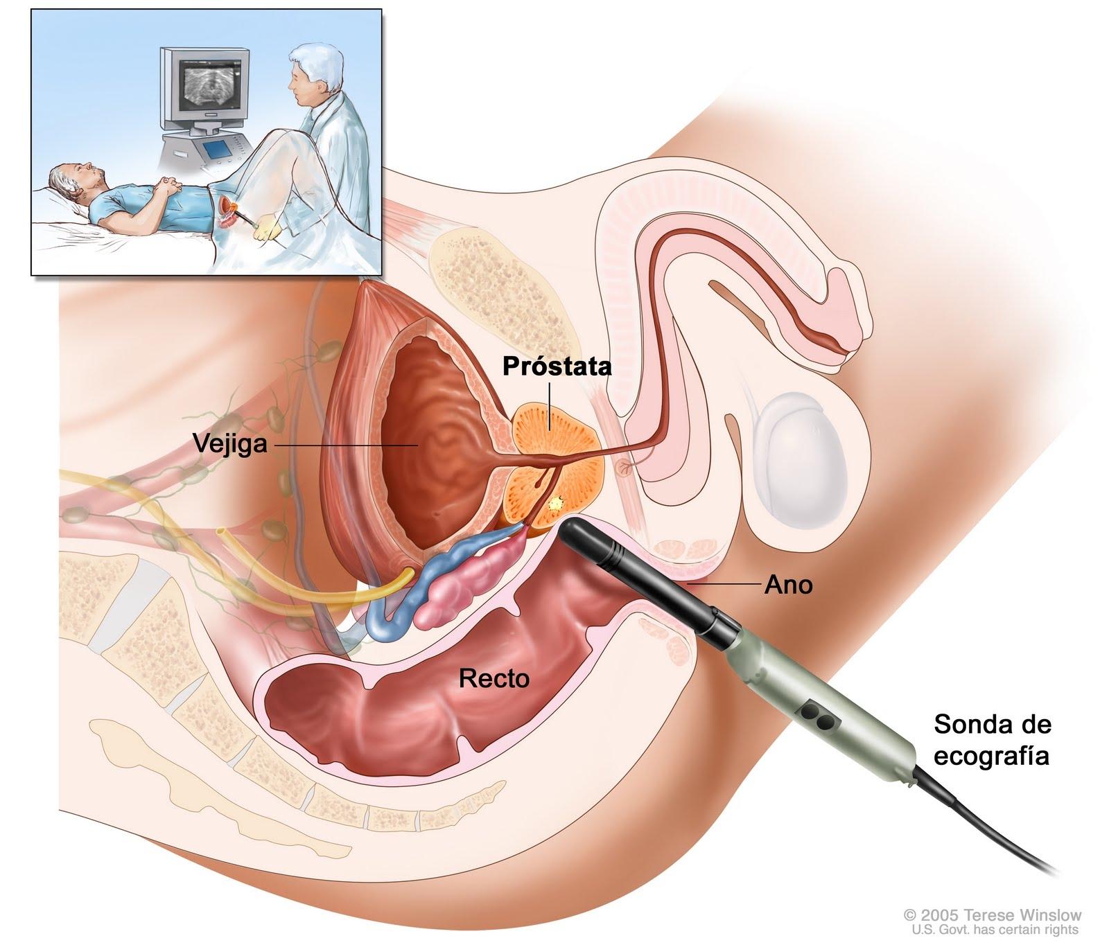 antígeno prostático que em examen