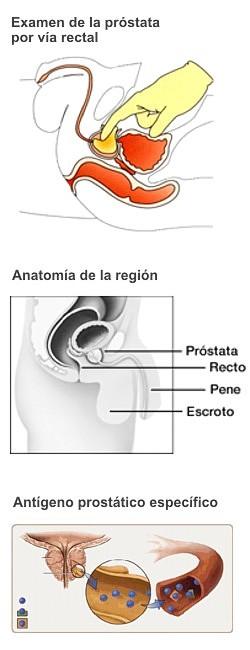 antígeno prostático específico libre 3