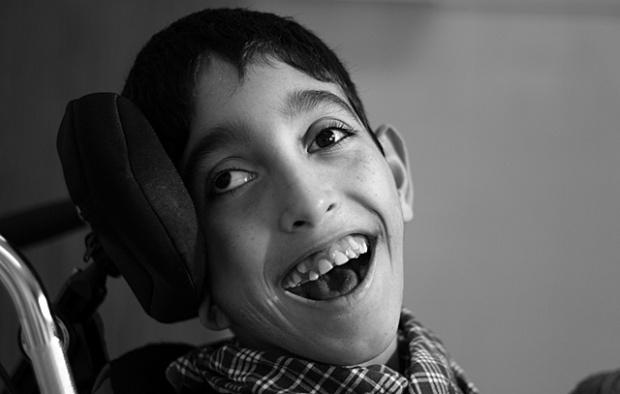 Resultado de imagen para paralisis cerebral